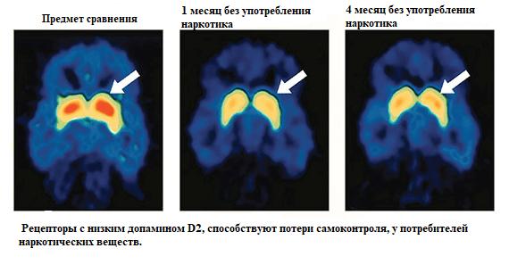 Влияние наркотика на мозг употребляющего человека.